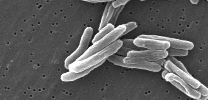 Mycobacterium tuberculosis. © CDC/ Dr. Ray Butler; Janice Carr