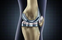 Knie-Implantat © Lightspring / shutterstock.com