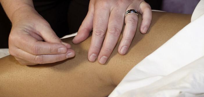 Akupunktur bei Arthrose im Knie © Cora Reed / shutterstock.com