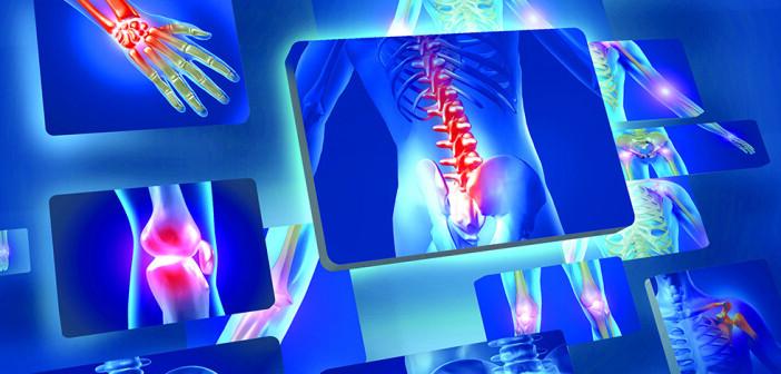 Ob Schulter, Hüfte oder Knie: Arthrose – Osteoarthritis – ist eine der häufigsten rheumatischen Erkrankungen, die zu chronischen Schmerzen führen kann. © Sebastian Kaulitzki / shuttestock.com