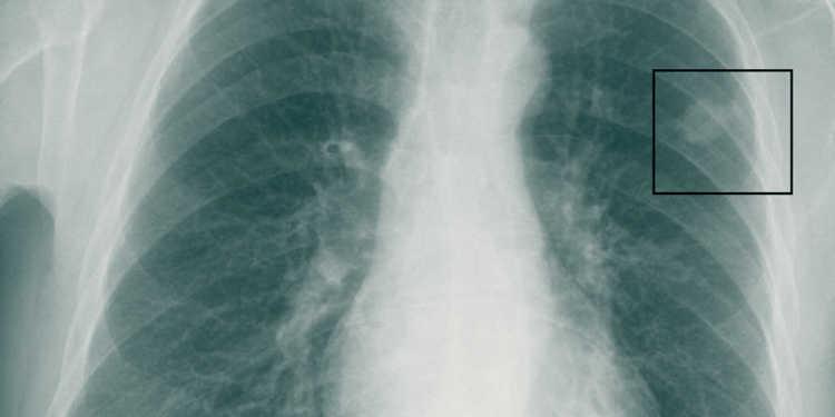 Strahlentherapie-Zweitmeinung bei Prostatakrebs - MedMix