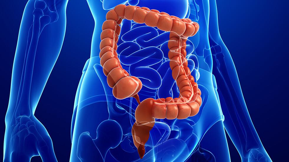 Diät für Patienten mit mikroskopischer Kolitis