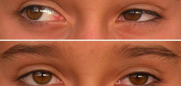 Ein Mädchen mit leicht ausgeprägtem Strabismus – Schielen operativ behandeln ist speziell bei Kinder zu empfehlen. © Creative Common / wikimedia