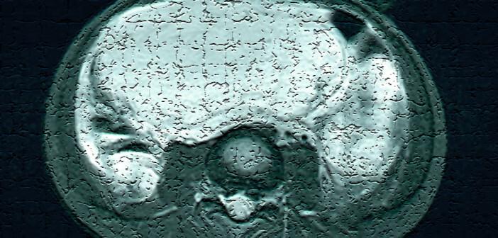 Weichgewebe-Sarkome – bösartige Weichgewebstumoren – gehören zu den seltenen Erkrankungen. © www.afcom.at