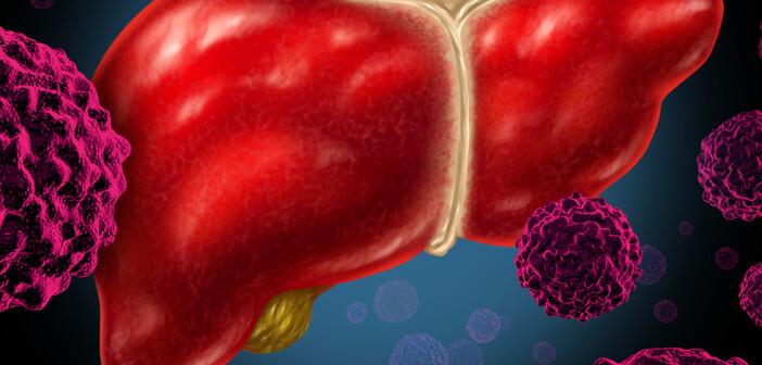 Eine effiziente kausale Therapie für Leberkrebs-Patienten existiert derzeit nicht. © Lightspring / shutterstock.com