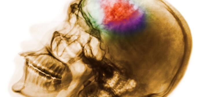 Ein akuter Gefäßverschluss einer Hirnarterie führt zu einem Schlaganfall. Die Zellen in diesem Gebiet sterben. © Puwadol Jaturawutthichai / shutterstock.com; Computergrafik AFCOM
