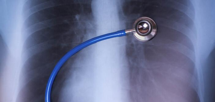 Asthma und COPD voneinander abzugrenzen ist für die Praxis außerordentlich wichtig. © andregric / shutterstock.com