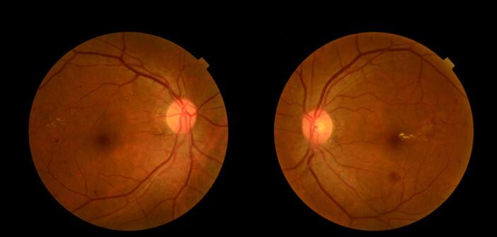 Eylea ist das effektivste Medikament zur Verbesserung des Sehvermögens bei Patienten mit reduzierter Sehkraft. © Jes2u.photo / shutterstock.com