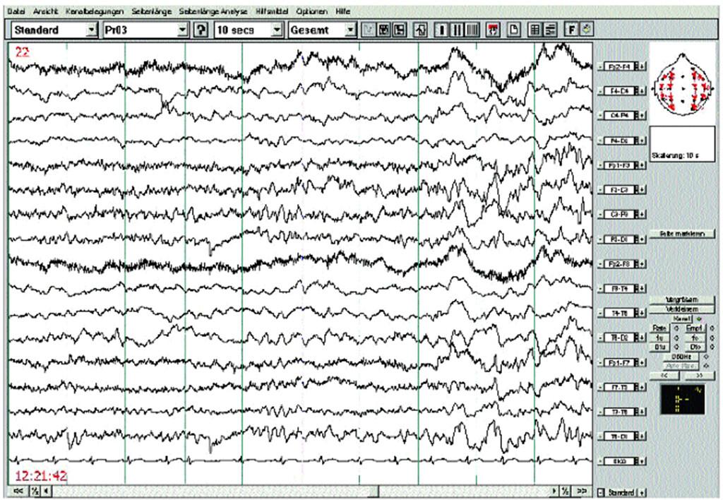 Im EEG finden sich eine leichte Allgemeinveränderung und ein ausgedehnter Herdbefund rechts mit Theta-Wellen, z.T. steiler konfiguriert, allerdings keine Epilepsie spezifischen Entladungen. © AFCOM