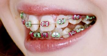 Die Gratis-Zahnspange soll in Wien bereits im Juli für Kinder und Jugendlichen bis zum 18. Lebensjahr erhältlich sein.