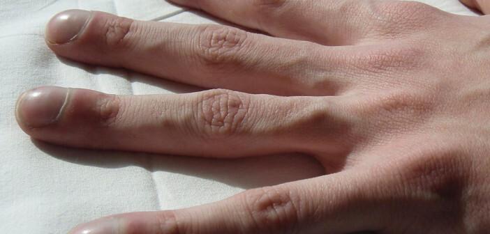 Die durch chronischen Sauerstoffmangel entstanden Trommelschlägelfinger weisen auf Mukoviszidose hin. © creative commons / Doc James - Wikimedia