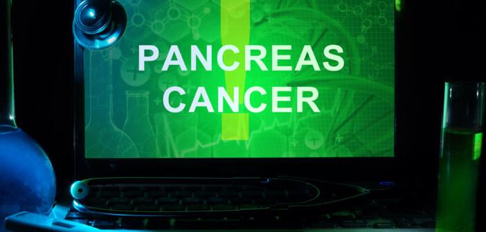 Es konnten Faktoren identifiziert werden, die das Risiko für Pankreaskrebs erkennen. © designer491 / shutterstock