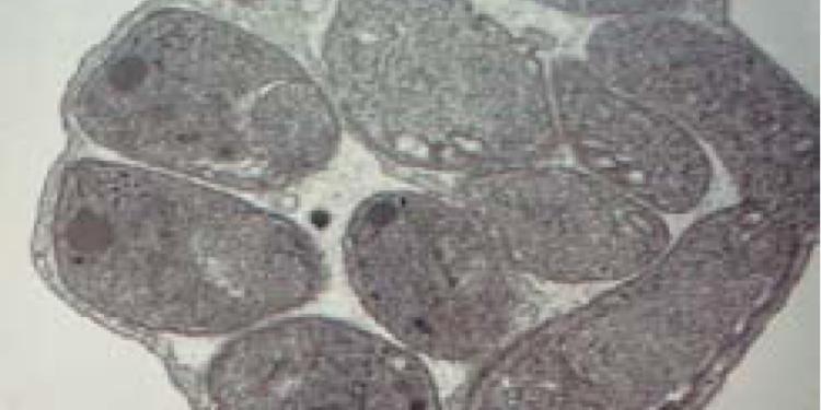 Abgeschlossene erythrozytäre Schizogonie: der erwachsene Schizont kurz vor der Zerstörung seiner Wirtszelle. Die dadurch frei werdenden Merozoiten werden wieder in Erythrozyten invaginieren und sich dort über verschiedene Zwischenformen (Ringform und Trophozoit) erneut vermehren.