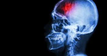 Die Thrombektomie – die mechanische Rekanalisation – erfordert sehr große Epertise. © Puwadol Jaturawutthichai /shutterstock.com