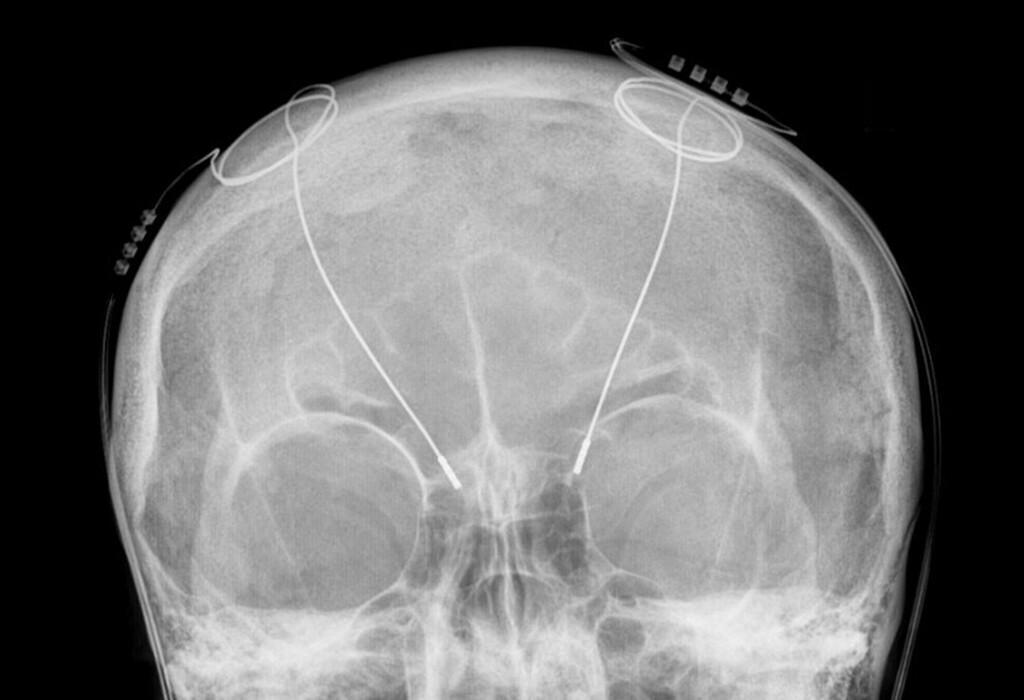 Zum Hirnschrittmacher bei Mrobus Parkinson zeigt die Abbildung die Sonden im Gehirn in einer Röntgenaufnahme des Schädels. © CC BY-SA 3.0 / Hellerhoff / Wikimedia