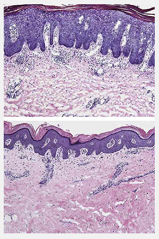 Das obere Bild zeigt die verdickte Epidermis bei Psoriasis-Erkrankung vor, unten dünn nach achtwöchiger Therapie gegen Psoriasis mit dem Antikörper Risankizumab – BI 655066. © James Krueger / The Rockefeller University