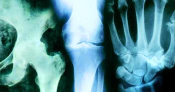 SYSADOA sind gekennzeichnet durch eine chondroprotektive und indirekt analgetische Wirkung, die verzögert einsetzt.