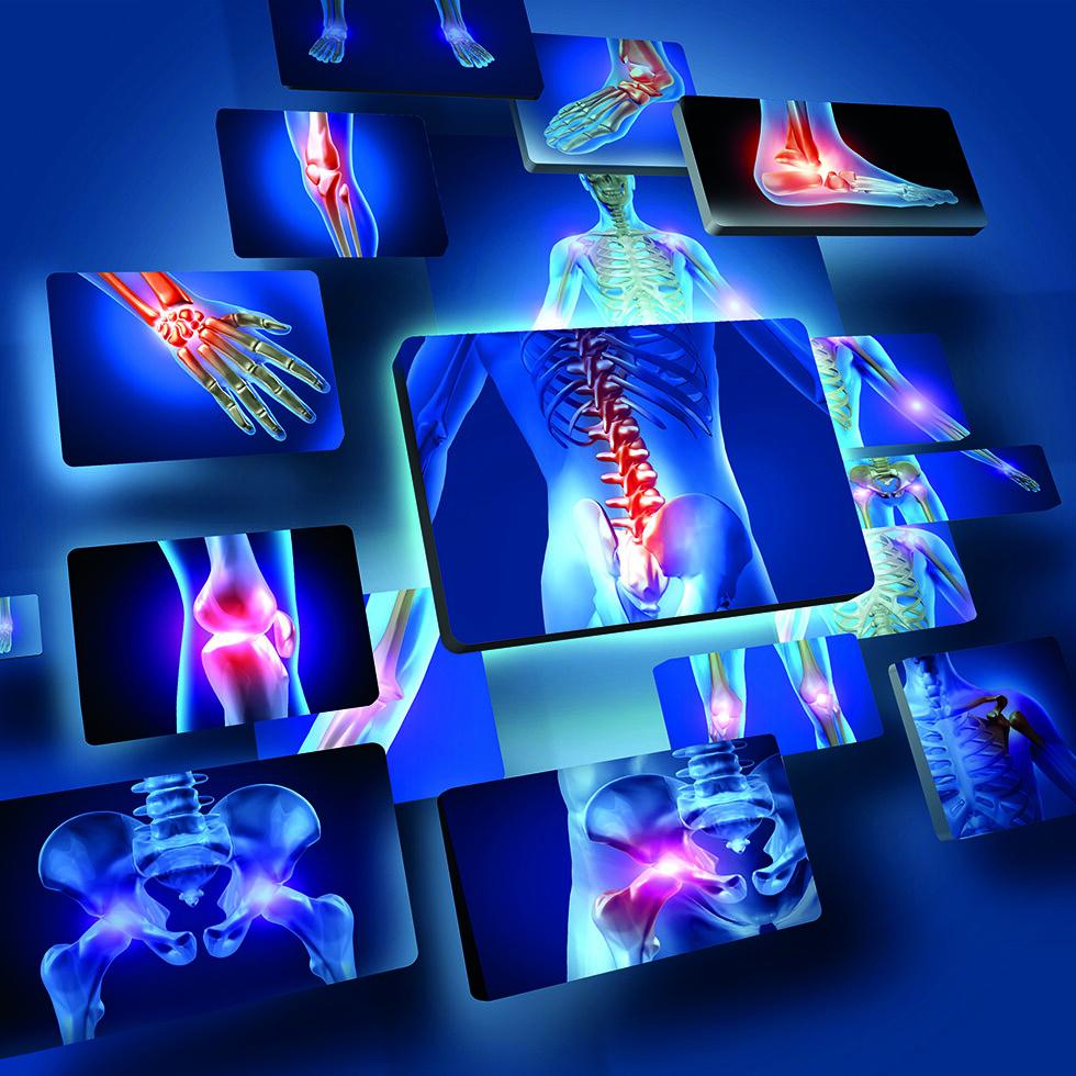 Arthrose ist die häufigste Gelenkerkrankung. © Sebastian Kaulitzki / shuttestock.com