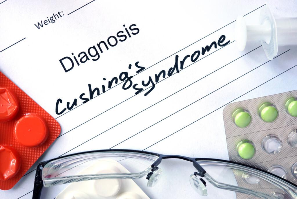 Die Diagnose Cushing Syndrom ist aufgrund verschiedener Differntialdiagnosen komplex. © designer491 / shutterstock.com