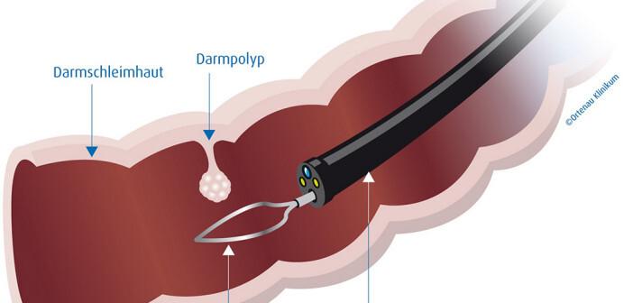 Die Koloskopie ist nach wie vor eine der effektivsten Methoden, diese Krebsform möglichst früh zu erkennen. Bild Darmspiegelung © Ortenau Klinikum