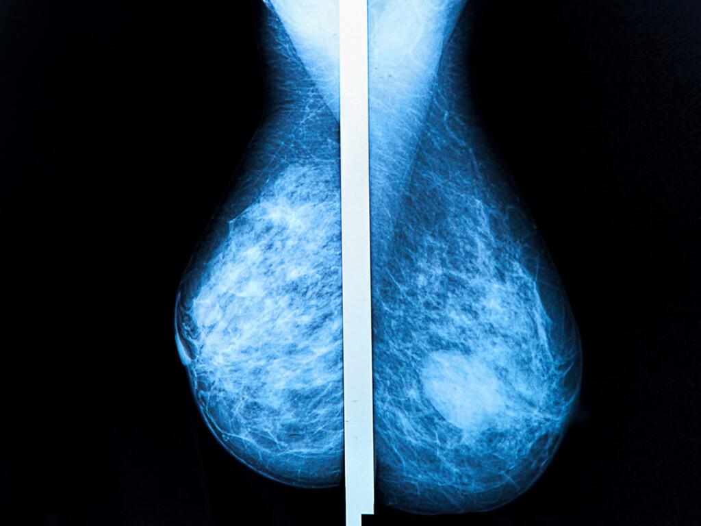 Mammographie am Prüfstand © Photoprofi30 / shutterstock.com