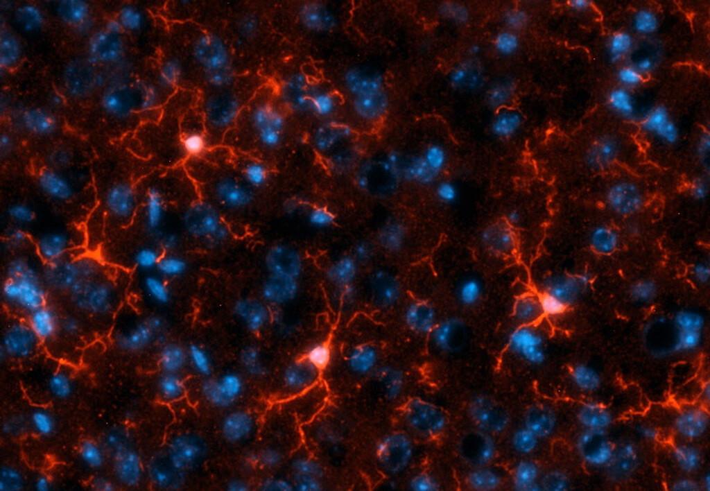 Mikroglia-Zellen (rot) bauen nach einer Hirnblutung Häm ab und bilden dabei Kohlenmonoxid. Können sie das nicht, verbessert die externe Gabe die Erholung der Hirnzellen. Blau: Nervenzell-Kerne. © Nils Schallner / Universitätsklinikum Freiburg