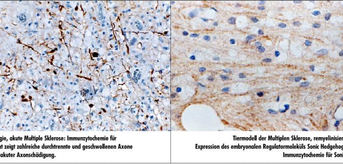 Pathophysiologie der Multiplen Sklerose