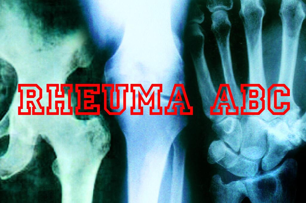 Das Rheuma ABC bietet Details zu den häufigsten Rheumadiagnosen.