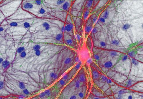 Transkranielle Magnetstimulation – Motoneuron © Universitätsklinikum Ulm, Prof. Dr. A. C. Ludolph