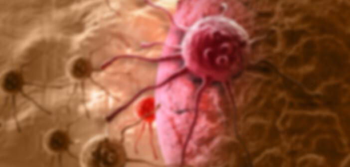 Illustration einer Darmkrebszelle. © jovan vitanovski / shutterstock.com