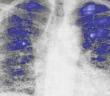 Neue Therapieoptionen zur idiopathischen Lungenfibrose untersucht.