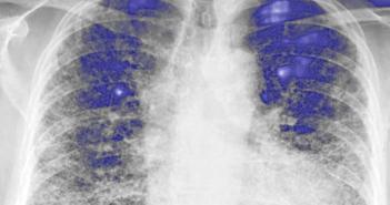Idiopathische Lungenfibrose effektiver therapieren