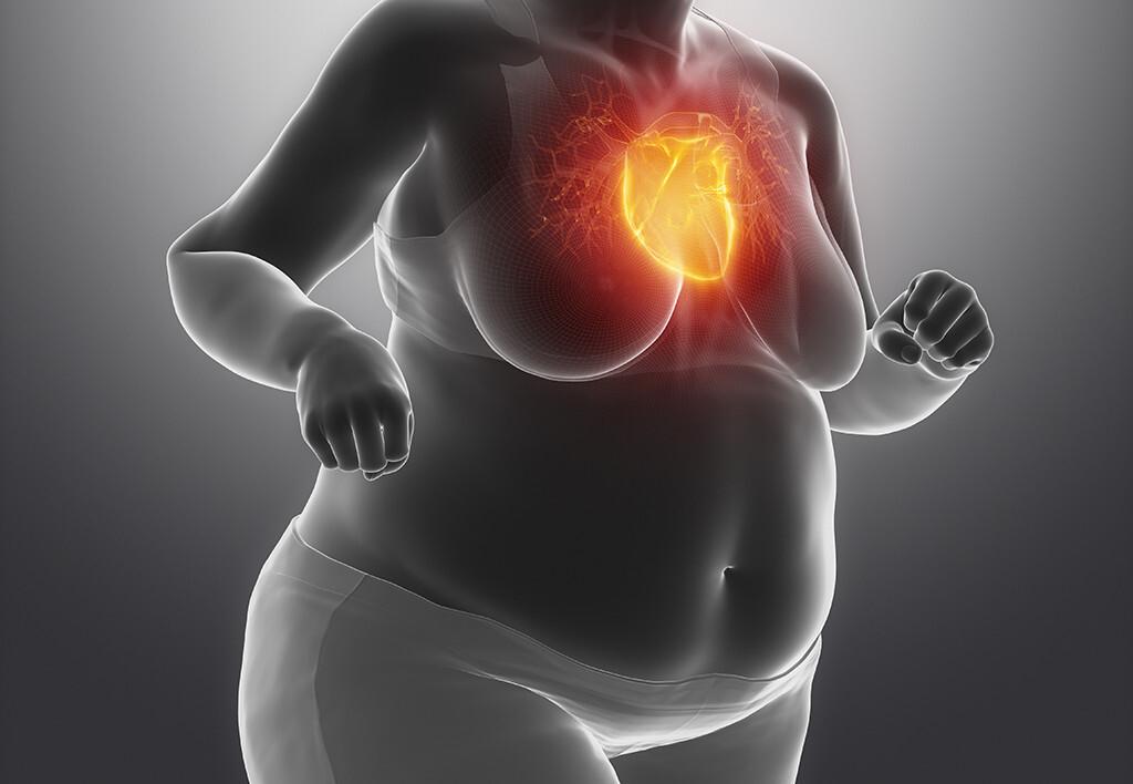 Auch Adipositas der Frau bedeutet ein höheres Risiko für eine koronare Herzkrankheit. © CLIPAREA l Custom media / shutterstock.com