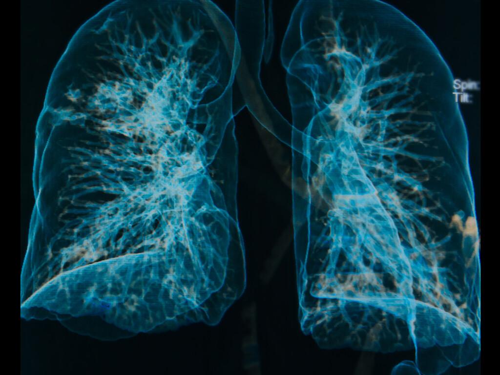 Exazerbation bei COPD ist eine plötzliche deutliche Verschlechterung im Verlauf der COPD-Erkrankung innerhalb eines kurzen Zeitraums. © Praisaeng / shutterstock.com