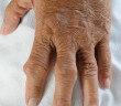 Der weltweit hohe Lebensstandard hat in den letzten 20 Jahren zu einem enormen Anstieg an Gichtkranken geführt. © joloei / shutterstock.com