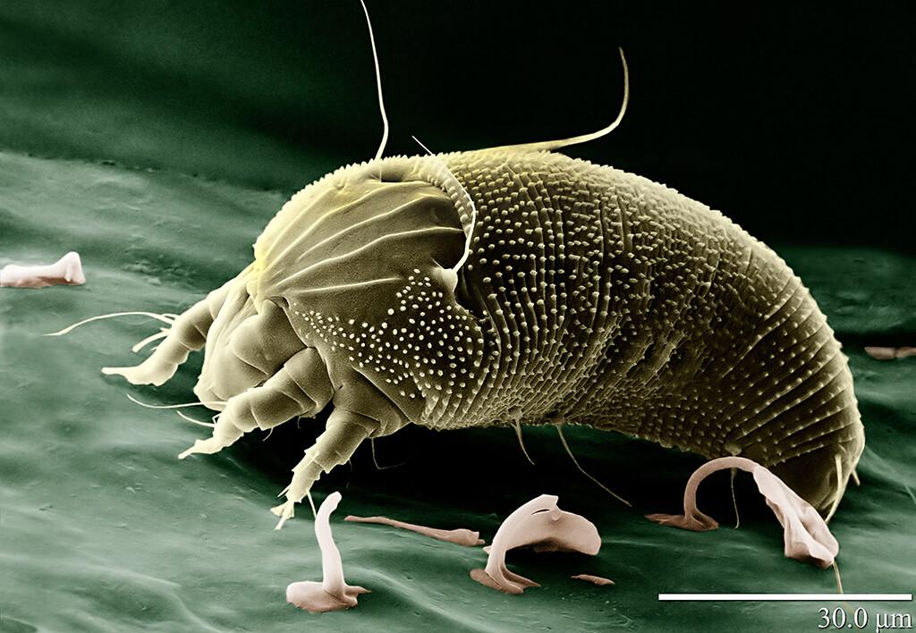 Krätze Skabies Milben: Bei hoher Bevölkerungszahl und schlechter Hygiene kann bis zu 30 % der Bevölkerung infiziert sein. © http://www.usda.gov/wps/portal/usda/usdahome