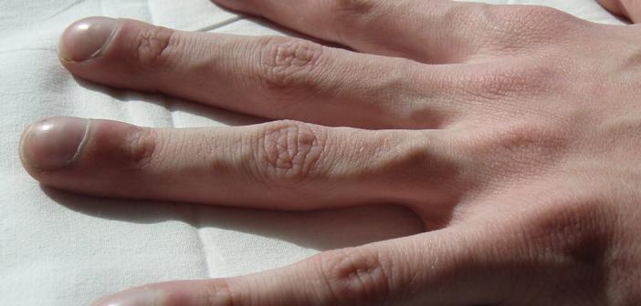 Trommelschlägelfinger bei einem Mukoviszidose-Patienten. Sie entstehen durch chronischen Sauerstoffmangel. © Dr. Jerry Nick / Wikimedia / Creative Commons