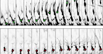 Wandernde Neuronen im Neocortex in Zeitrafferaufnahmen. Oben: Wanderungsbewegungen einer Kontrollneurone; unten: Wanderungsbewegungen einer Bcl11a-mutanten Nervenzelle. © Wiegreffe et al. / Institut für Molekulare und Zelluläre Anatomie der Universität Ulm