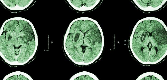 Schlaganfall tritt häufig mit eindrucksvollen neurologischen Ausfallserscheinungen auf. © Puwadol Jaturawutthichai / shutterstock.com