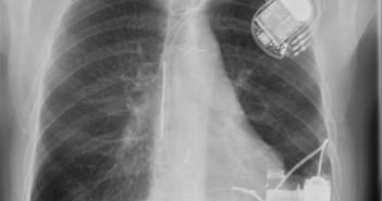 Röntgen-Thoraxaufnahme eines Patienten mit Herzschrittmacher und LVAD (Heartware). © DGKN/Siebler M, Marx R. Klinische Neurophysiologie 2015 (Thieme); 46