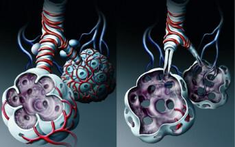 Die Diagnose COPD kann mittels Spirometrie, Fluss-Volumen-Kurve oder Ganzkörperplethysmographie nachgewiesen werden. © www.afcom.at