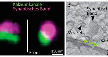 Die linke Abbildung zur Fragestellung warum wir hören zeigt STED-Aufnahmen von Kalziumkanälen, die an der synaptischen Membran der Bändersynapsen angeordnet sind (grün). Das synaptische Band ist konfokal aufgenommen und hier in Magenta dargestellt. Rechts ist ein virtueller Schnitt aus einer 3D-Rekonstruktion einer Bändersynapse –aufgenommen mit einem Transmissions-Elektronenmikroskop. © umg / Jung und Chakrabarti