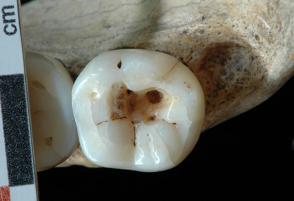 Das Loch im rechten unteren dritten Backenzahn (Weißheitszahn) des Spätpaläolithischen Individuums aus Villabruna beweist, dass Zahnmedizin schon vor 14000 Jahre eingesetzt wurde. © S. Benazzi