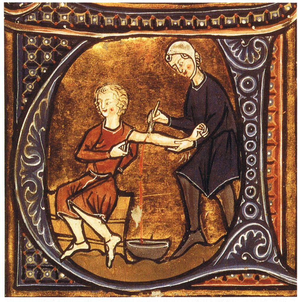In der Geschichte der Medizin waren Klistiere und Aderlässe zweifelhafte Therapieversuche.