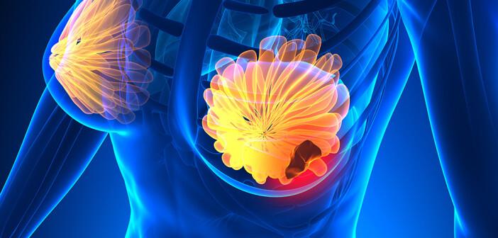 Die Strahlentherapie bei Brustkrebs hat die brusterhaltende Operation erst möglich gemacht. © decade3d - anatomy online / shutterstock.com