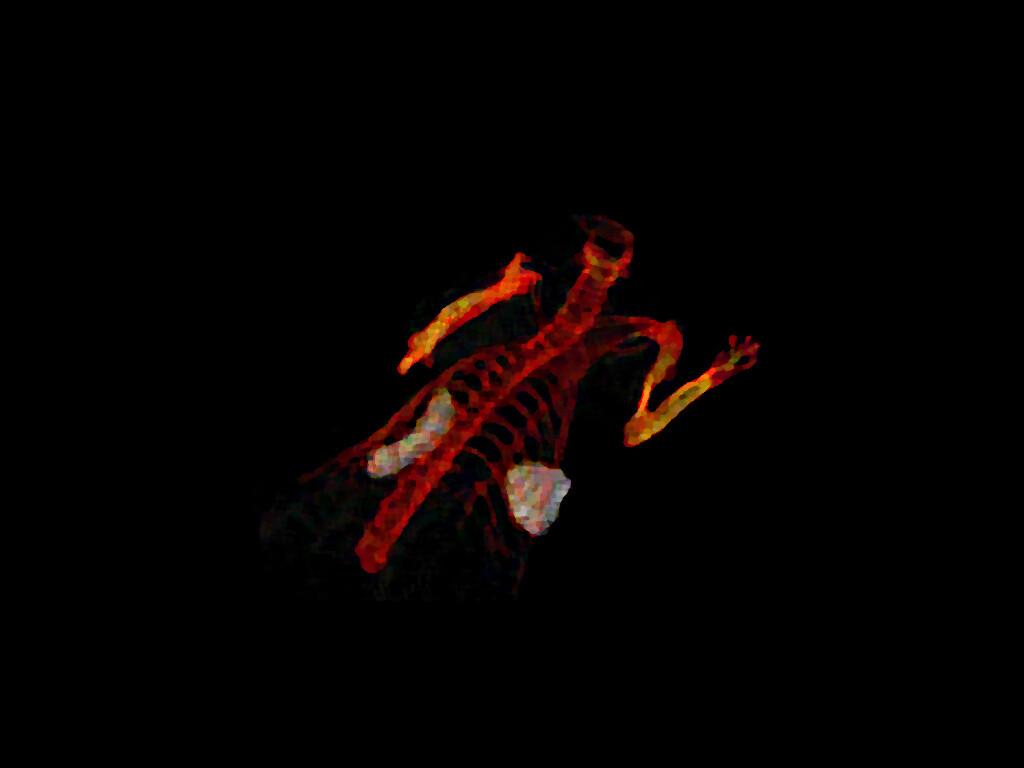 Diagnostik von Tumoren und deren Behandlung gehören zu den größten Herausforderungen der Medizin des 21. Jahrhunderts. Das BIld zeigtTumorzellen, die E2-Crimson exprimieren (grau-weiße Strukturen), in den Organen einer Ratte nach sechs Wochen Tumorwachstum. © Arbeitsgruppe Shastri