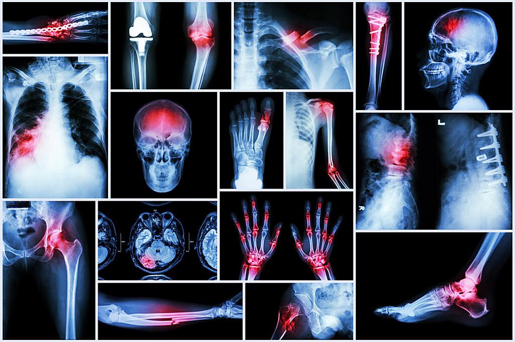 Aufgrund der vielfältigen, auch bei anderen Erkrankungen vorkommenden Sympome ist eine Fibromyalgie zu erkennen kompliziert. © Puwadol Jaturawutthichai / shutterstock.com