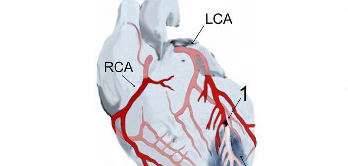 Herzinfarkt verhindern? © wikimedia