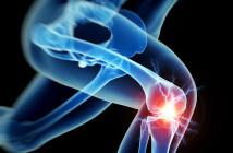 Die Sinnhaftigkeit der Anwendung von Hyaluronsäure bei Kniegelenksarthrose wird in jüngsten Untersuchungen bestätigt. Mit einem langfristigen Erfolg darf allerdings nicht gerechnet werden. © Sebastian Kaulitzki / shutterstock.com