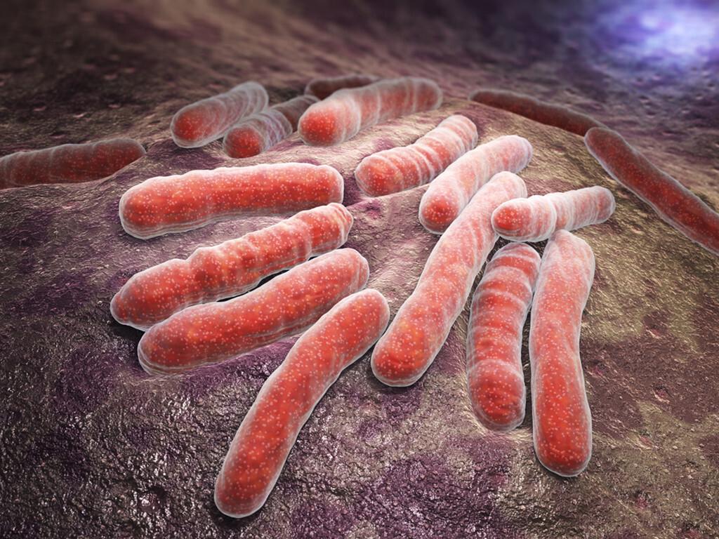Bei den meisten Infektionen mit Tuberkulose breiten sich die Bakterien in der Lunge aus. © Tatiana Shepeleva / shutterstock.com